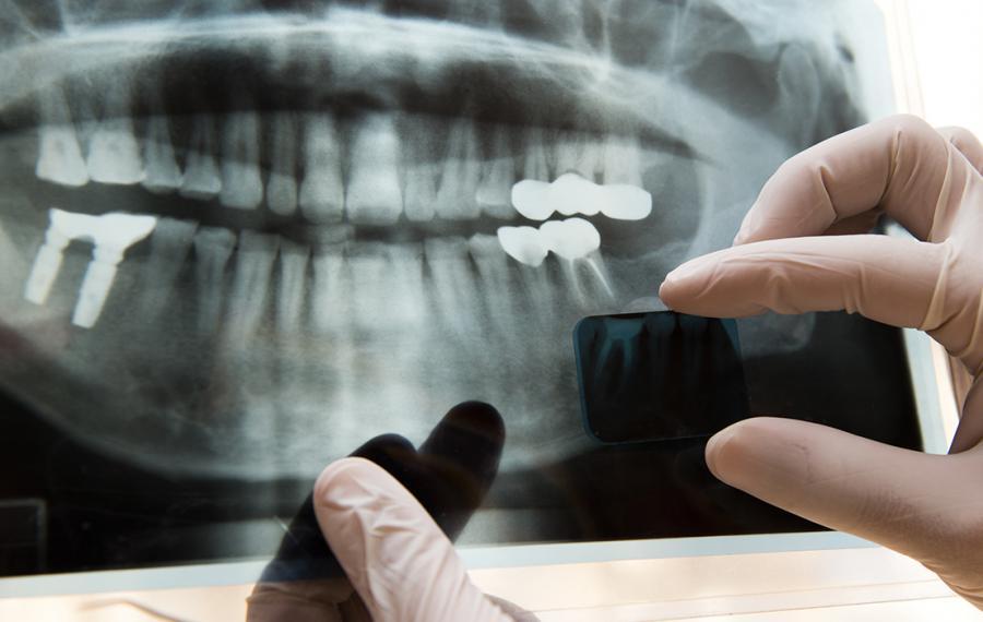 Kanal Tedavisi Nedir? - Dentasey Ağız ve Diş Sağlığı Polikliniği