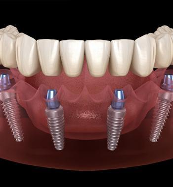 All On Four Tekniği - Dentasey Ağız ve Diş Sağlığı Polikliniği