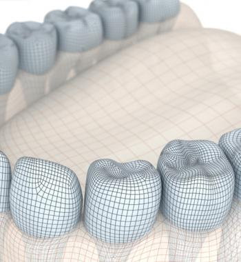 Digital Surgical Guide - Dentasey Oral and Dental Health Clinic