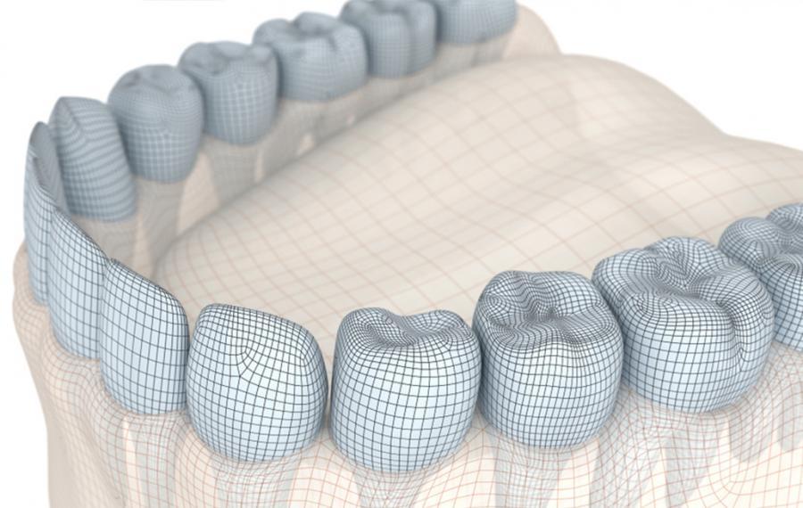 Dijital Cerrahi Rehber - Dentasey Ağız ve Diş Sağlığı Polikliniği