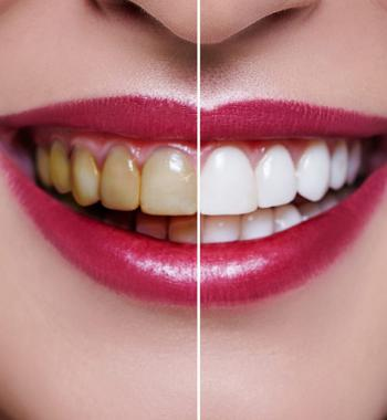 Tooth Bleaching - Dentasey Oral and Dental Health Clinic