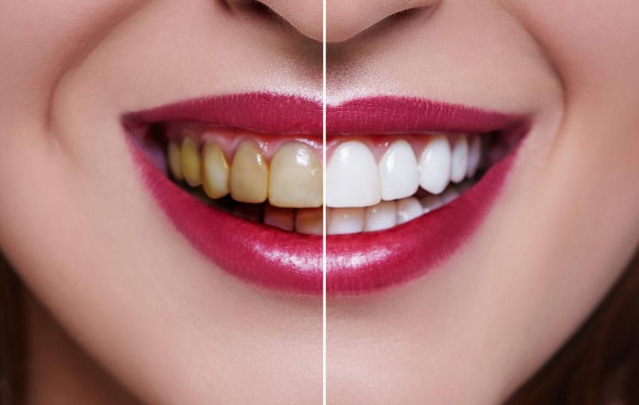 Zahnaufhellung - Dentasey Klinik für Mund- und Zahngesundheit