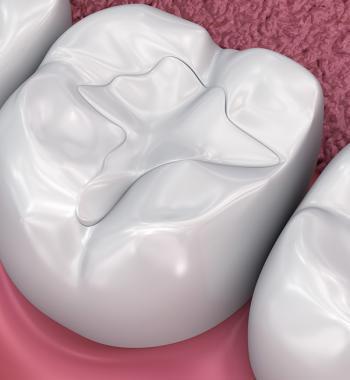 Diş Dolgu Uygulamaları - Dentasey Ağız ve Diş Sağlığı Polikliniği