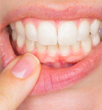 Zahnfleischkrankheiten Diagnose und Behandlungen - Dentasey Klinik für Mund- und Zahngesundheit