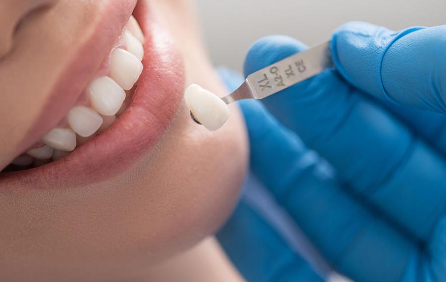 Diş Kuronları - Dentasey Ağız ve Diş Sağlığı Polikliniği