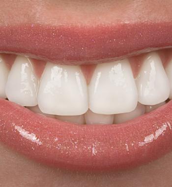 Gummy Smile Behandlung - Dentasey Klinik für Mund- und Zahngesundheit