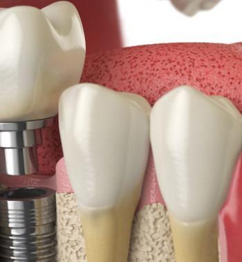 Zahnimplantatbehandlung - Dentasey Klinik für Mund- und Zahngesundheit