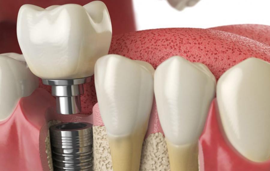 İmplant Tedavisi - Dentasey Ağız ve Diş Sağlığı Polikliniği