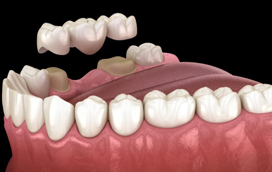 Dental Bridge Procedure - Dentasey Oral and Dental Health Clinic