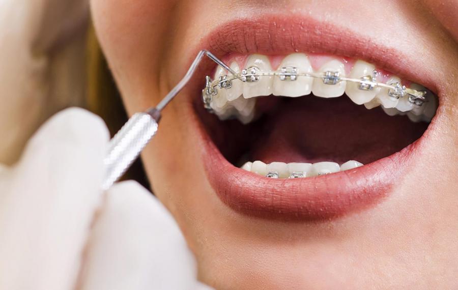 Ortodontik Tedavi - Dentasey Ağız ve Diş Sağlığı Polikliniği