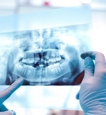 Röntgen und Panoramabildgebung - Dentasey Klinik für Mund- und Zahngesundheit