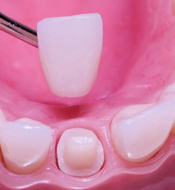 Zirconium Crowns - Dentasey Oral and Dental Health Clinic